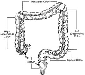 polyps of the colon and rectum treatment in charleston sc